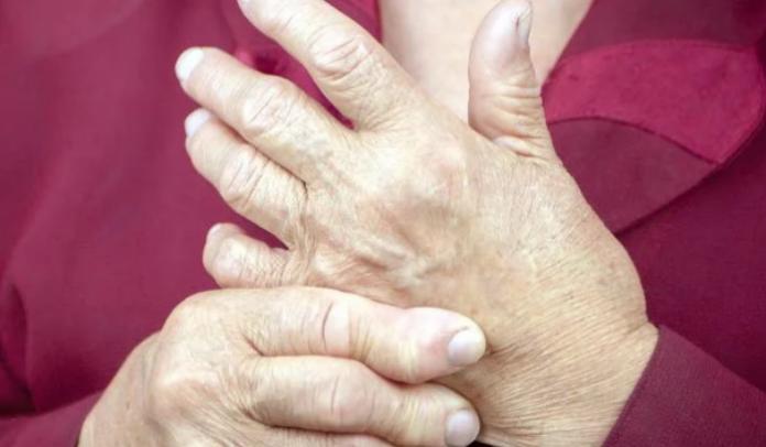 Rheumatoid arthritis drug could help treat covid-19